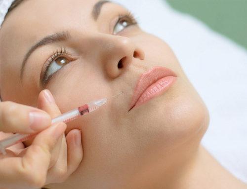 Toxina botulínica ( Botox)